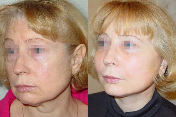 фото до и после лифтинга средней зоны лица, хирург - Гульнара Шах