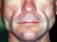 Липоатрофия лица: 4 способа исправить ситуацию