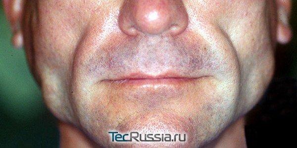 липоатрофия лица