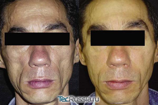 до и после имплантирования западающих щек