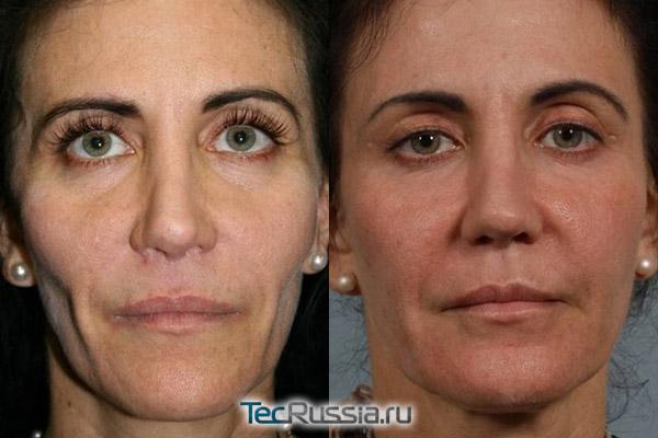 фото до и после коррекции лицевой липодистрофии