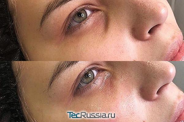 Teosyal под глаза - результат процедуры