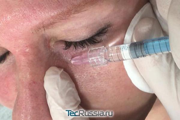 биоревитализация зоны вокруг глаз