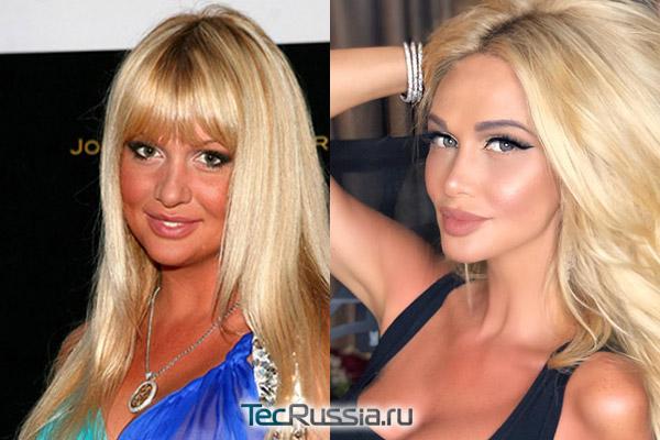 Виктория Лопырева до и после пластики скул