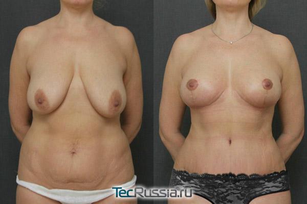 до и после подтяжки груди и живота