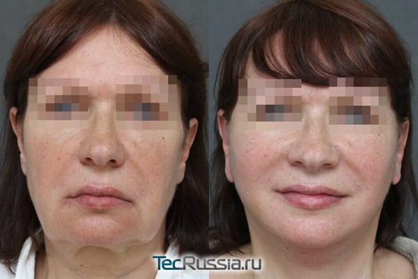 фейслифтинг у Кобазева, фото до и после