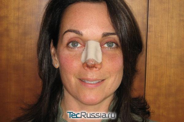 пациентка через несколько дней после пластики носа